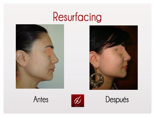 resurfacing-1