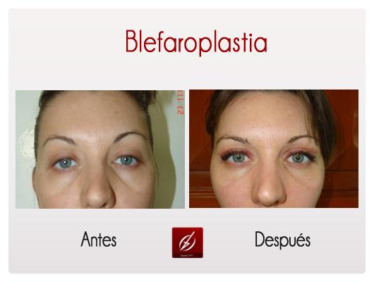 blefaroplastia1