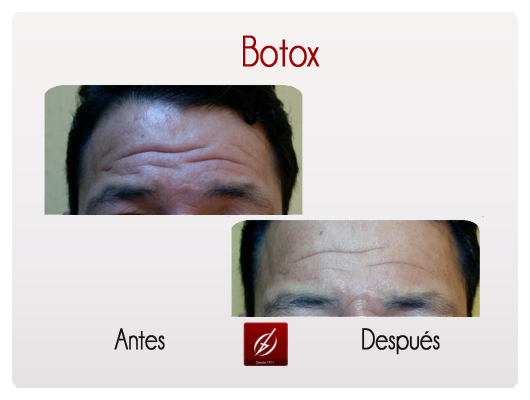 Botox Galer 237 A L 225 Ser Puebla Cl 237 Nica Dermatol 243 Gica Y