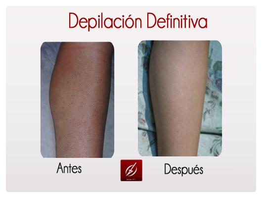 depilacion1