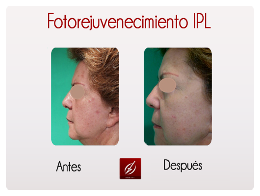 Fotorejuvenecimiento Ipl Galer 237 A L 225 Ser Puebla Cl 237 Nica