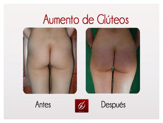 gluteos1