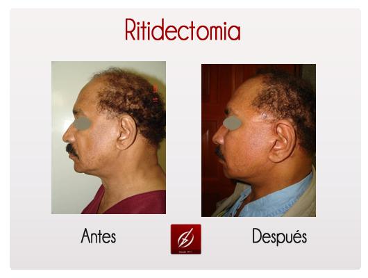 Ritidectom 237 A 2 Galer 237 A L 225 Ser Puebla Cl 237 Nica
