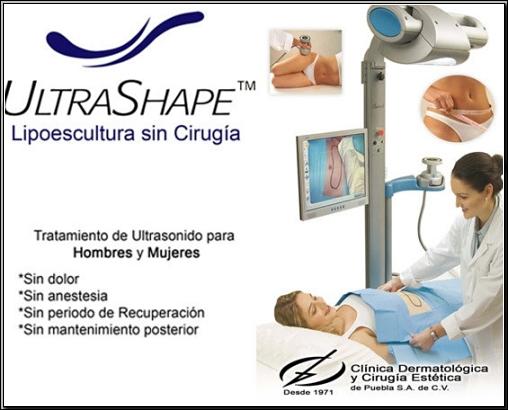 Lipoescultura Sin Cirug 237 A Ultrashape L 225 Ser Puebla