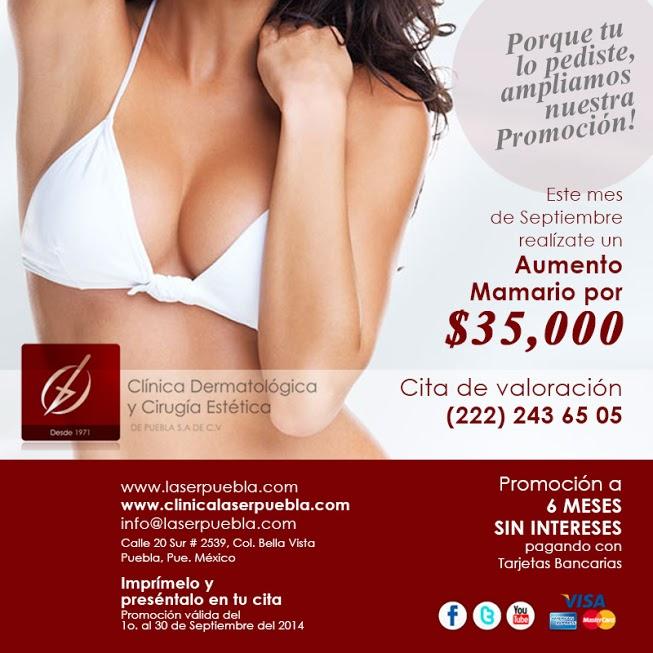 Aumento De Senos En Promoci 243 N L 225 Ser Puebla Cl 237 Nica