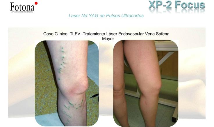 tratamiento para varices con laser endovascular