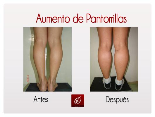 pantorrillas-1