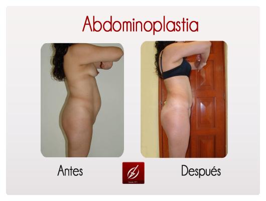 abdo1