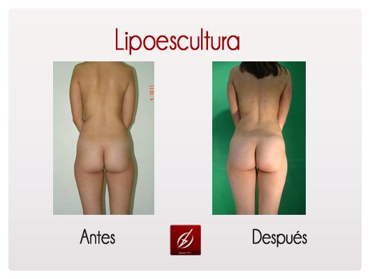 lipoescultura5.