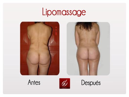 lipomassage1
