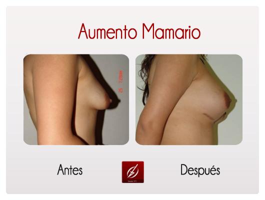 mamario1