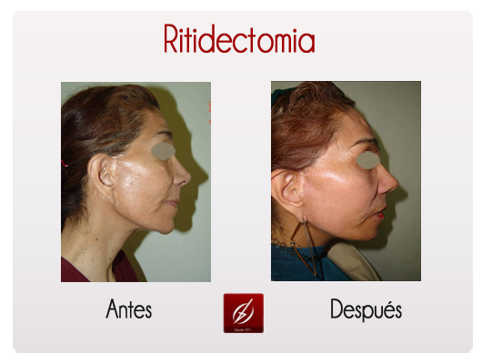 ritidectomia1